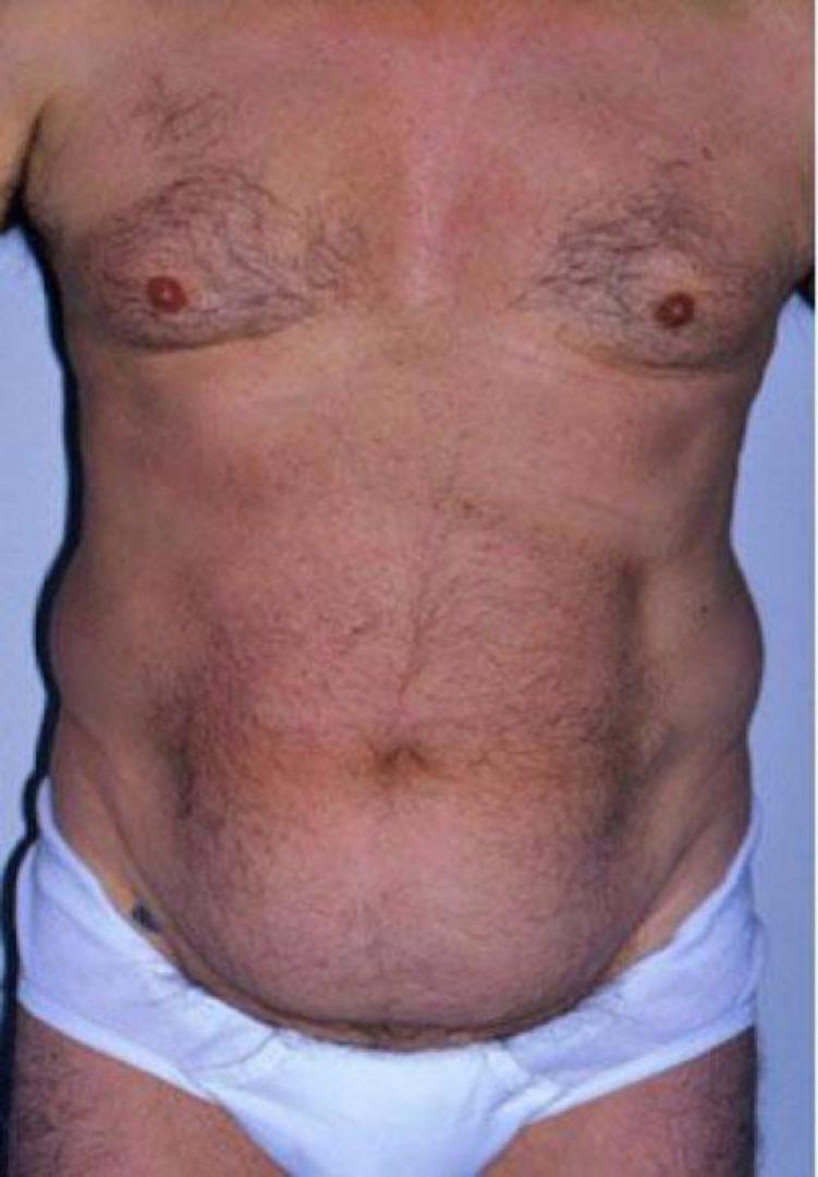 Seattle Area Male Liposuction Before Photo
