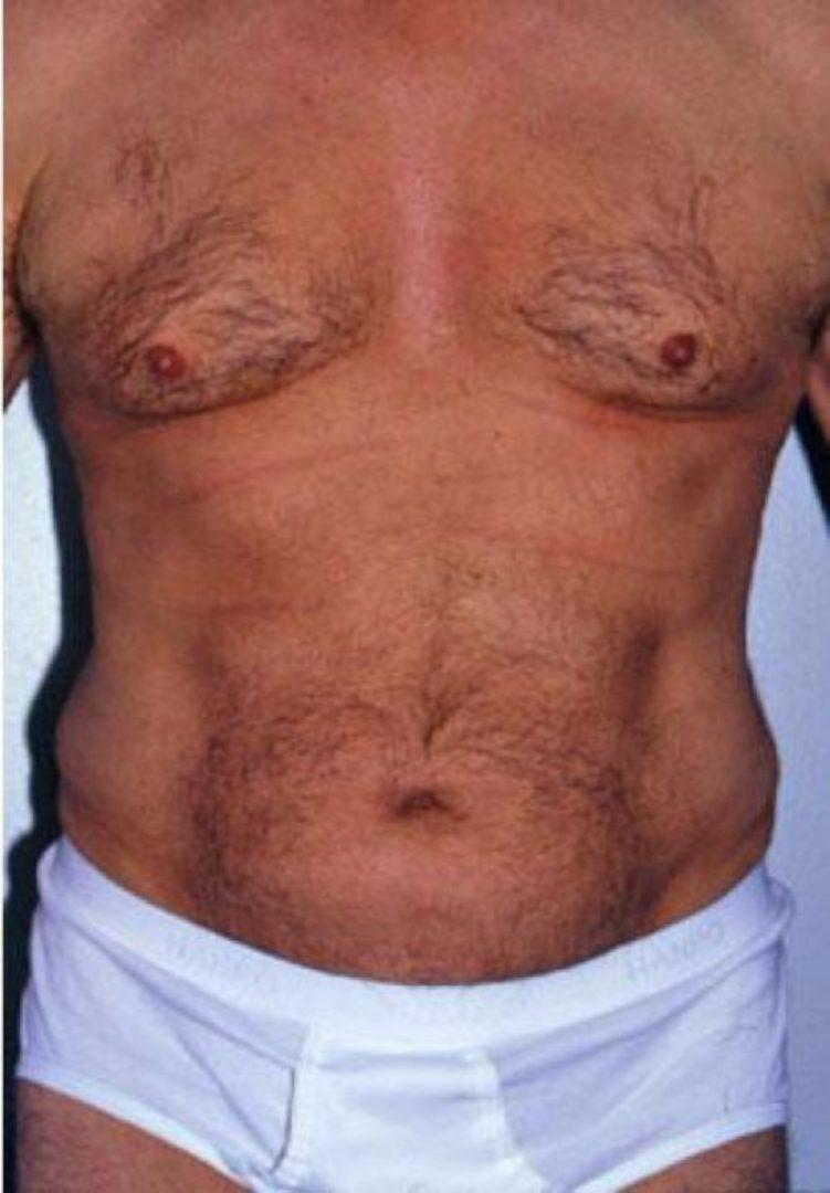 Seattle Area Male Liposuction After Photo