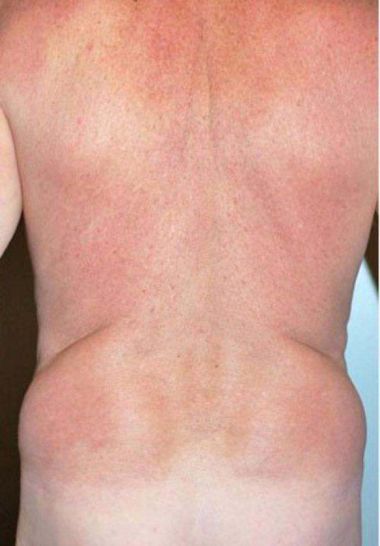 Seattle Area Male Liposuction Before & After Photo