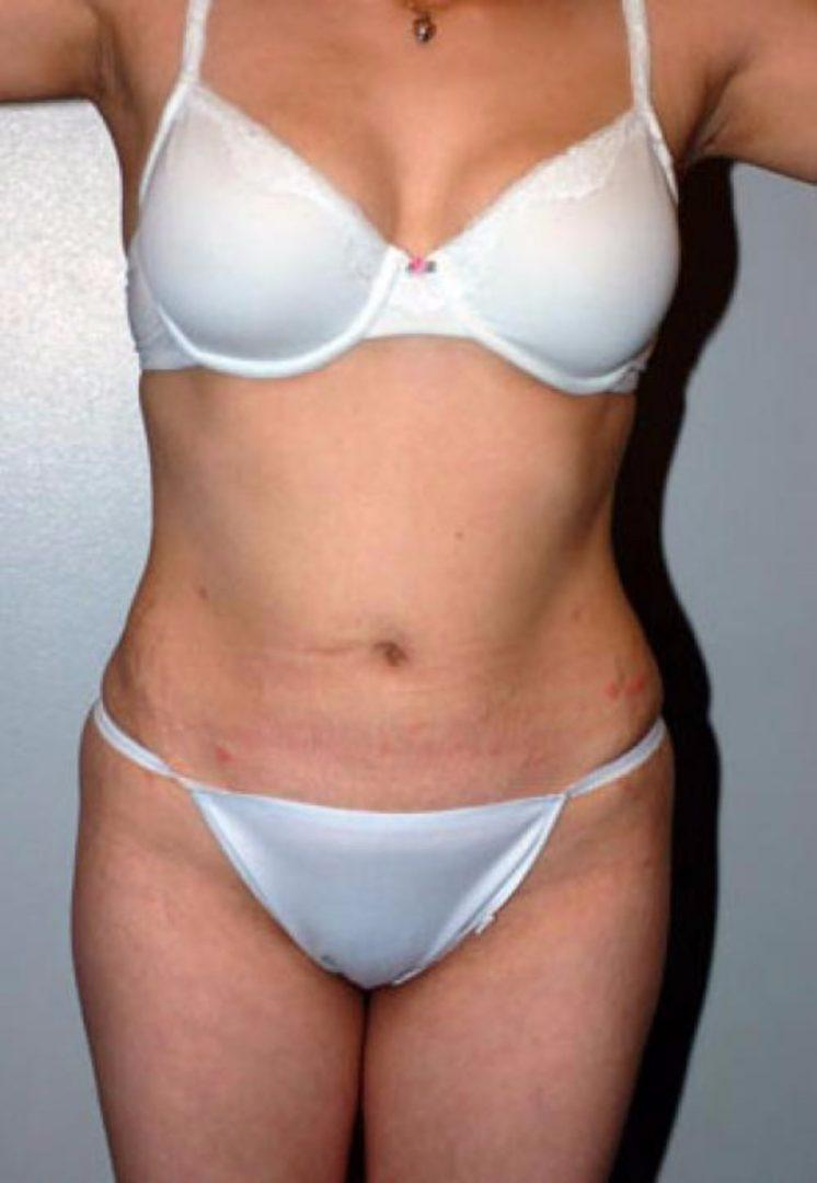 Seattle Area Female Liposuction After Photo