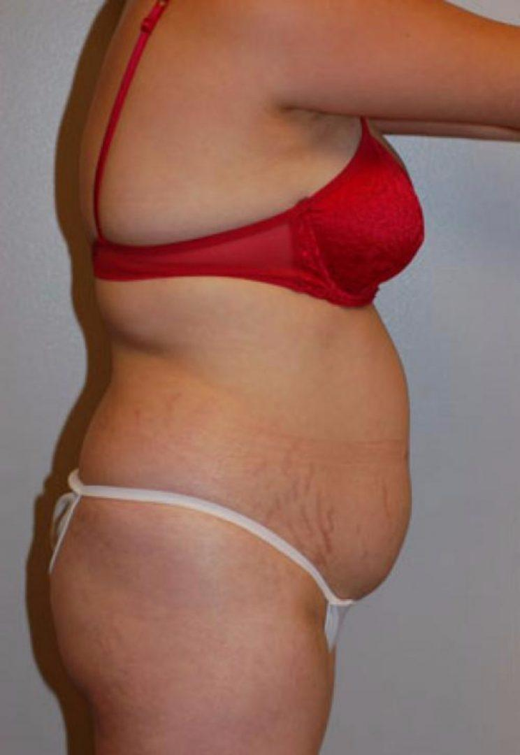 Seattle Area Female Liposuction Before Photo