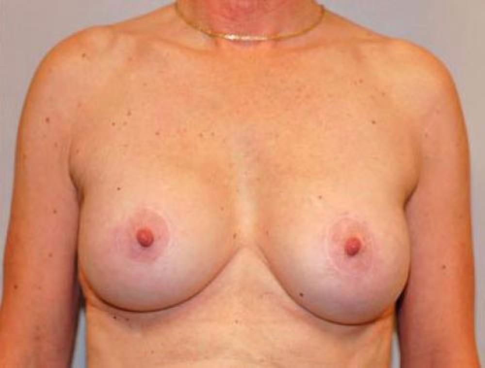 Breast Asymmetry