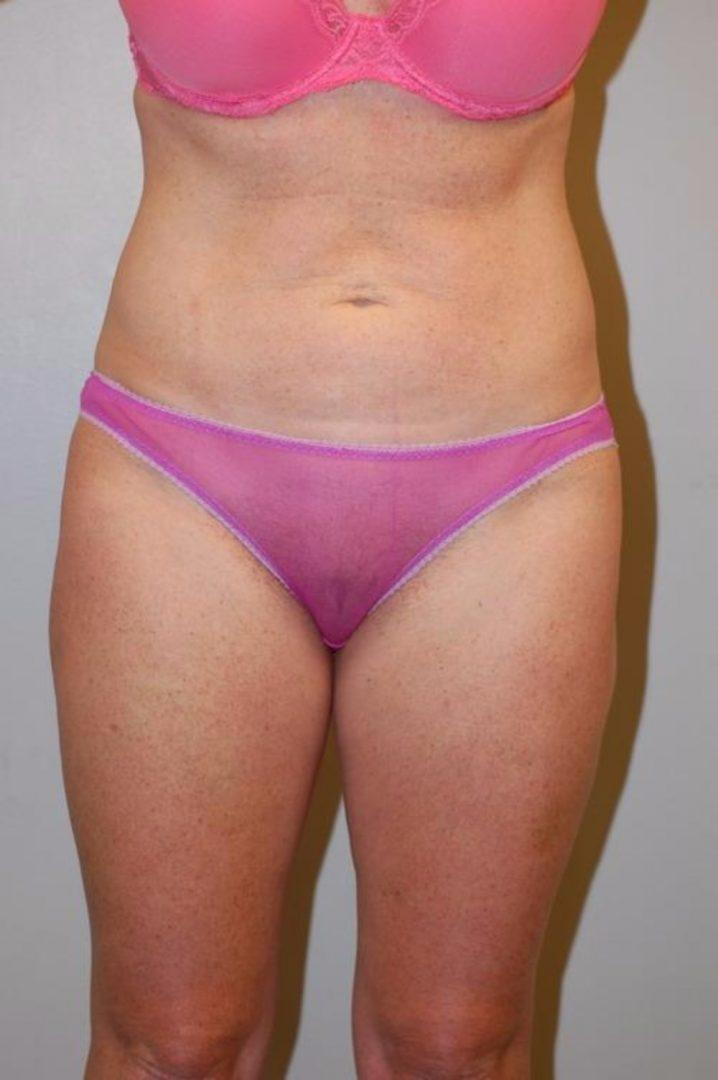 Seattle Area Female Thigh Liposuction Before Photo
