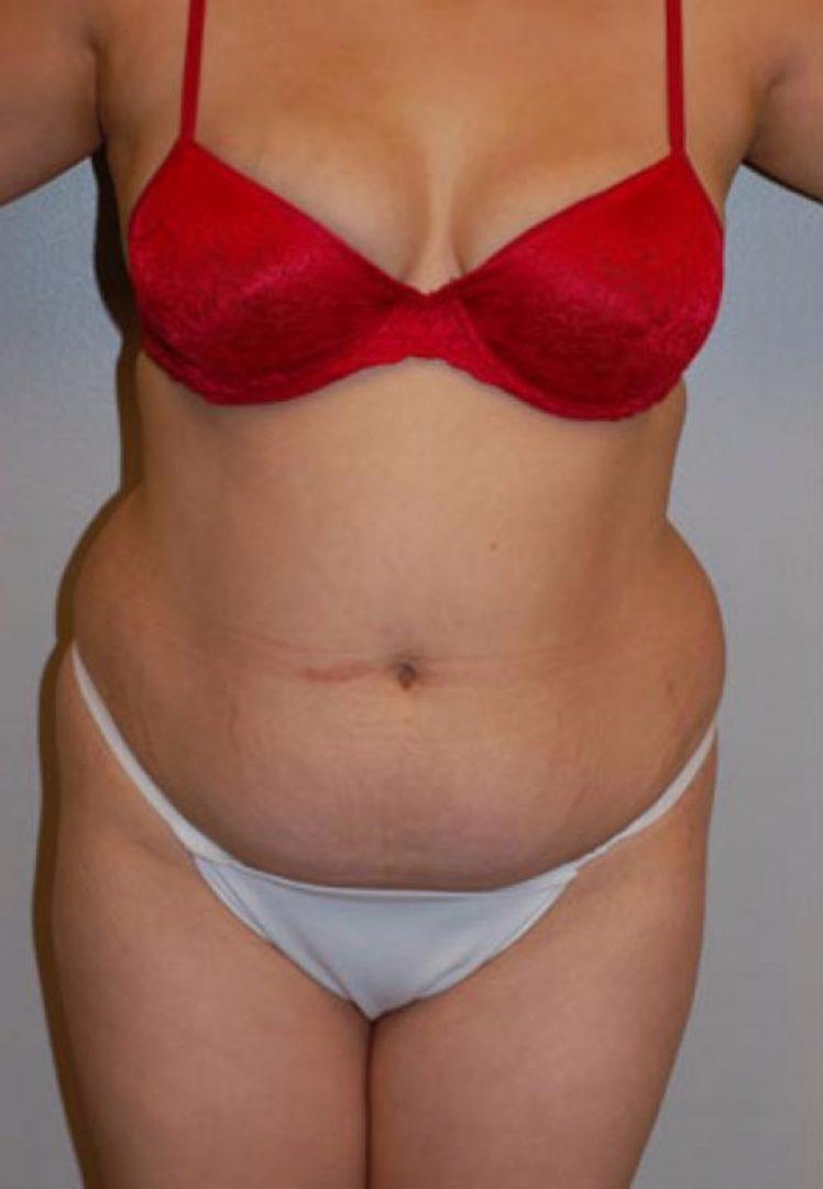 Seattle Plastic Surgery