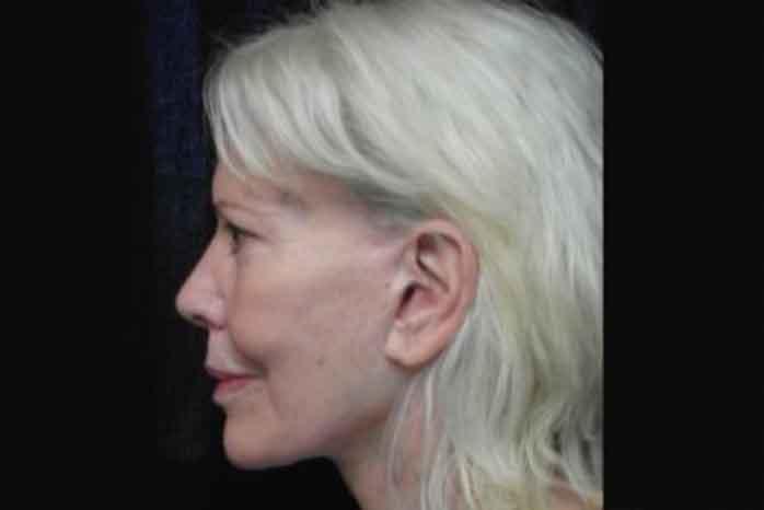 Case #1006 – Laser Skin Resurfacing