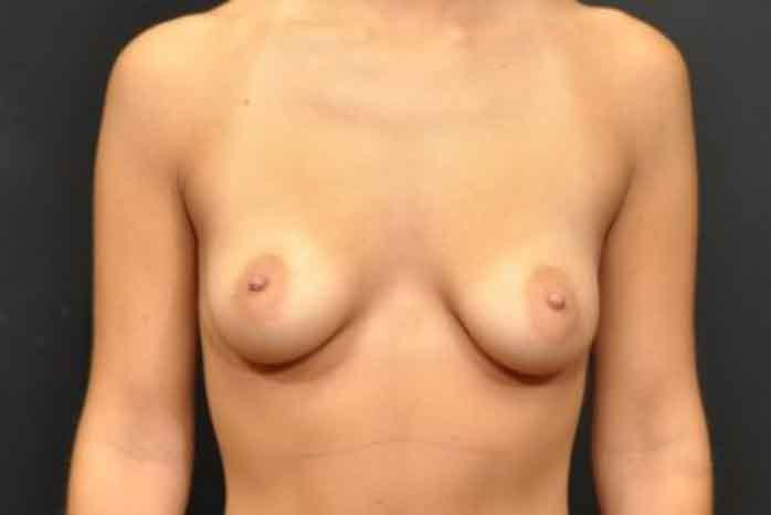 Case #1018 – Breast Augmentation