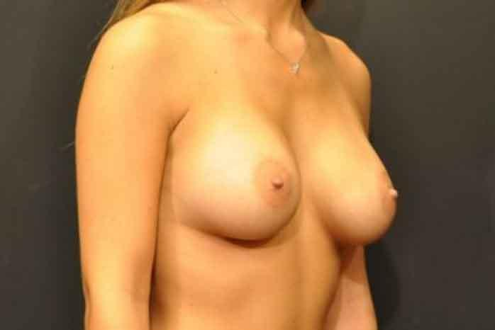 Case #1018 – Breast Augmentation
