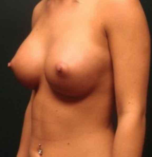 Case #1030 – Breast Augmentation