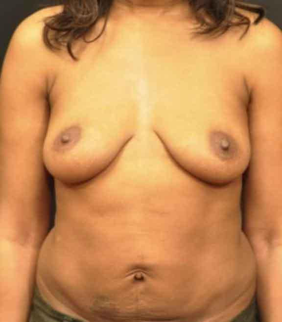Case #1036 – Breast Augmentation