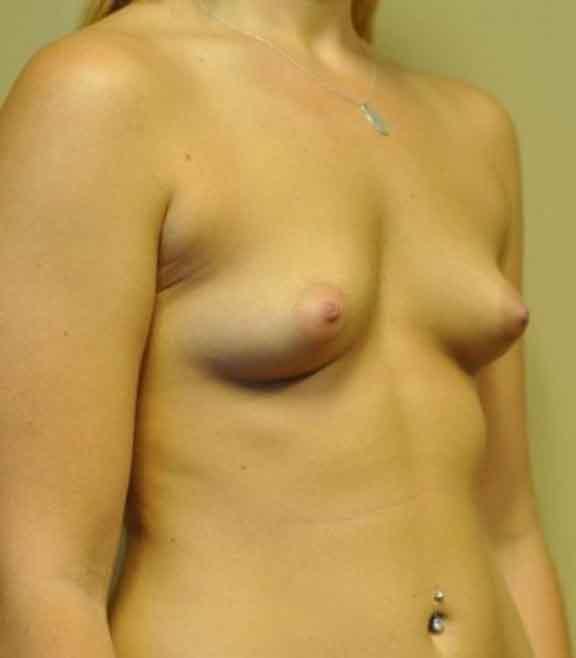 Case #1042 – Breast Augmentation