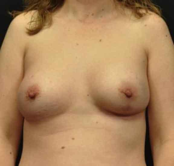 Case #1048 – Breast Augmentation