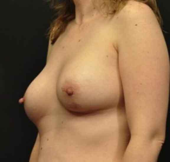 Case #1048 – Breast Augmentation