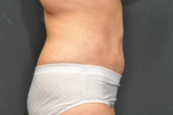 Case #104 – Liposuction