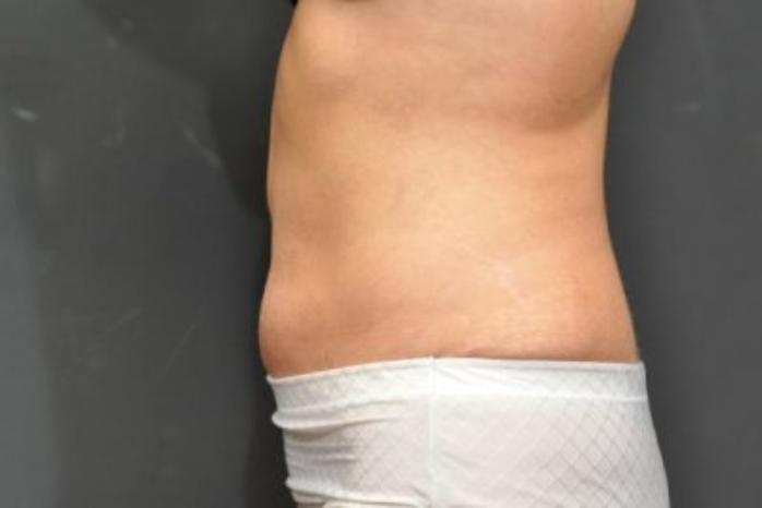 Case #104 – Tummy Tuck