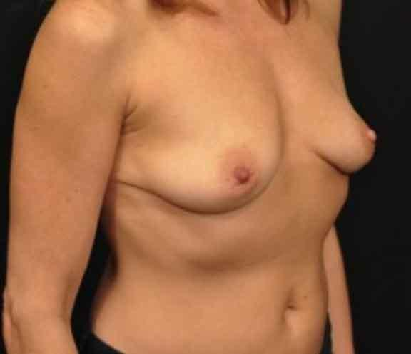 Case #1054 – Breast Augmentation