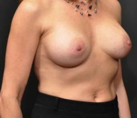 Case #1054 – Breast Augmentation