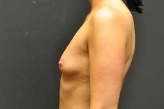 Case #1060 – Breast Augmentation