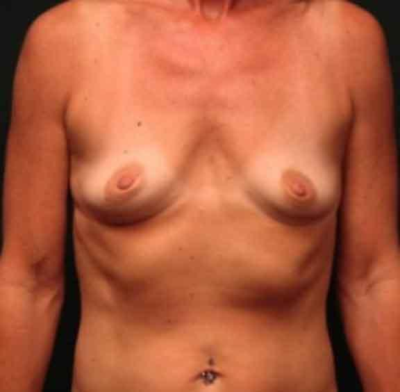 Case #1072 – Breast Augmentation