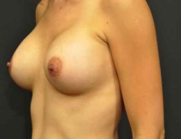 Case #1078 – Breast Augmentation