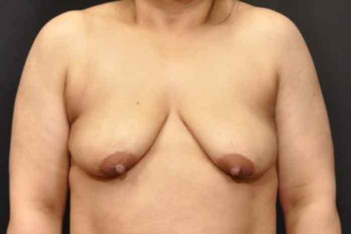 Case #1084 – Breast Augmentation