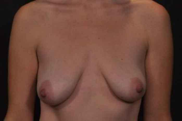 Case #1094 – Breast Lift