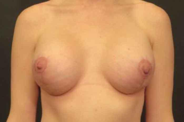 Case #1094 – Breast Lift
