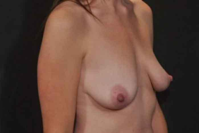 Case #1094 – Breast Augmentation