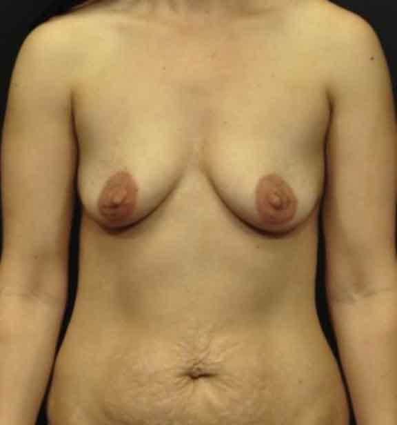 Case #1106 – Breast Augmentation