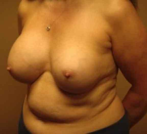 Case #1112 – Breast Augmentation