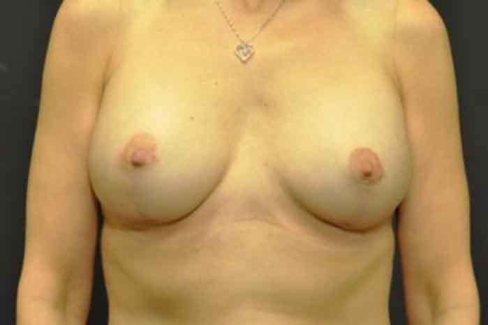 Case #1118 – Breast Augmentation