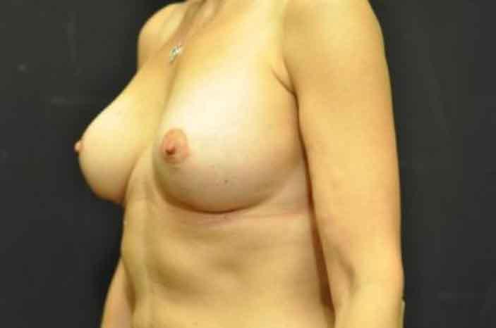 Case #1118 – Breast Augmentation