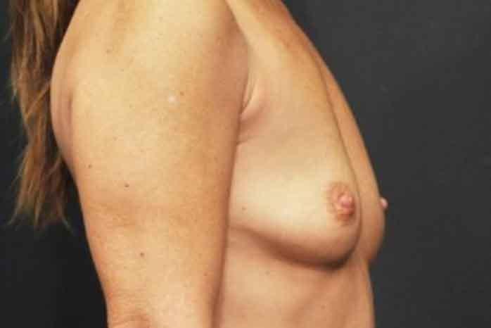 Case #1128 – Breast Augmentation