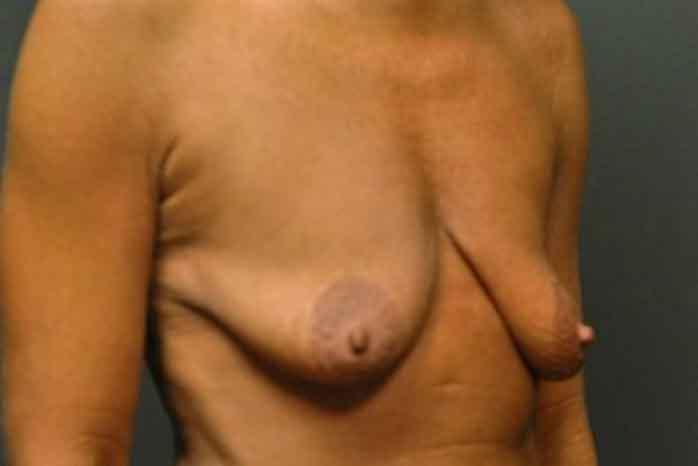 Case #1138 – Breast Augmentation