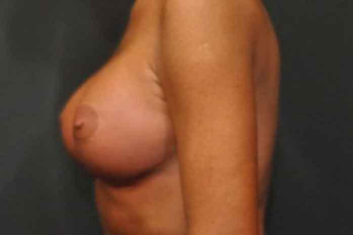 Case #1138 – Breast Lift