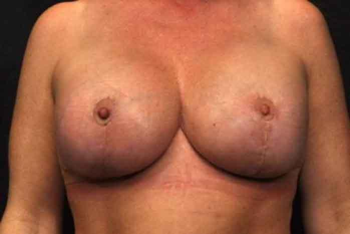 Case #1148 – Breast Augmentation