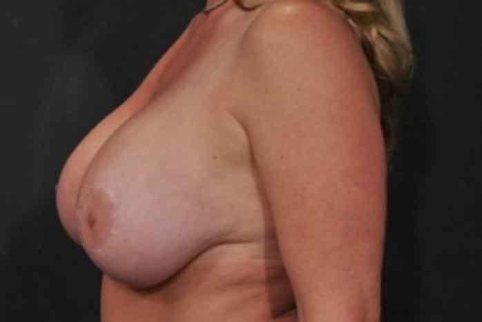 Case #1148 – Breast Lift