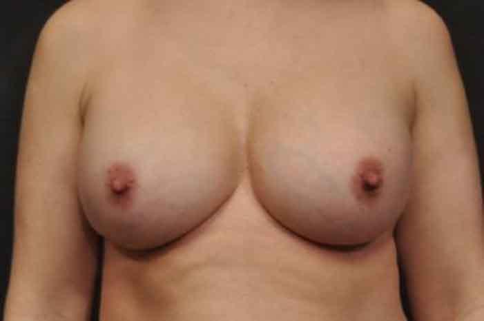 Case #1160 – Breast Augmentation
