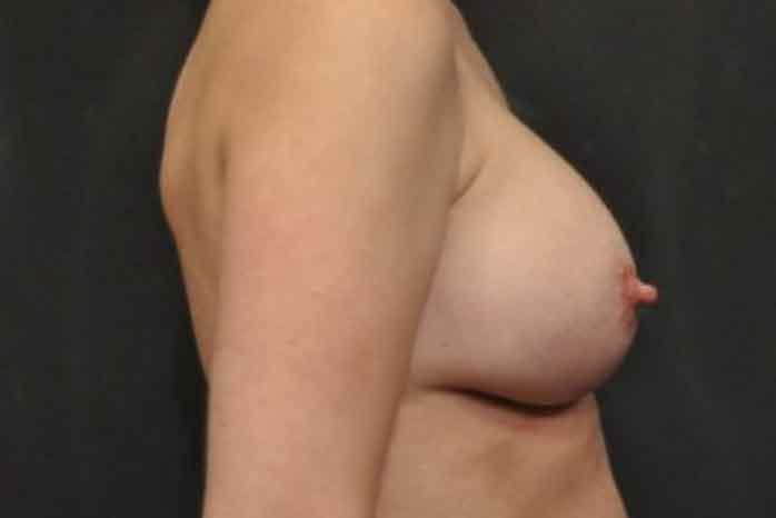Case #1160 – Breast Augmentation