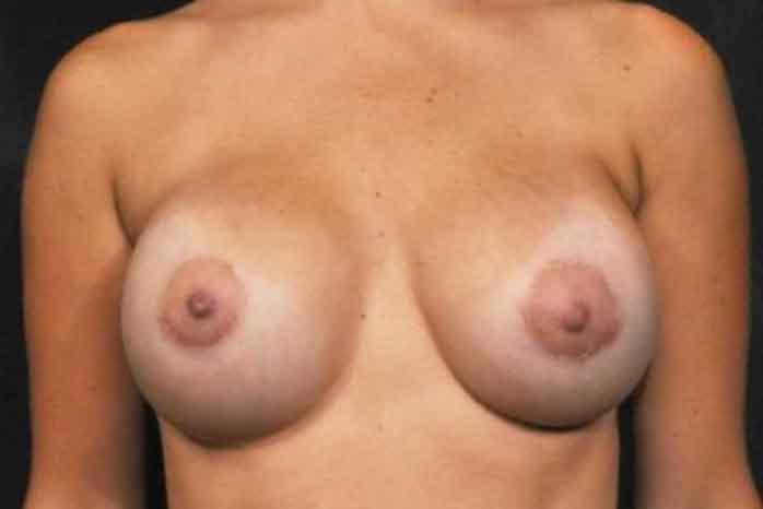 Case #1172 – Breast Augmentation