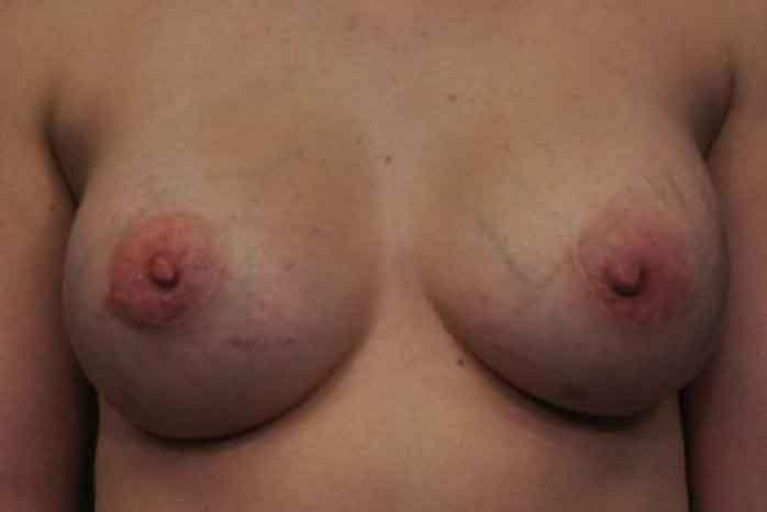 Case #1192 – Breast Augmentation