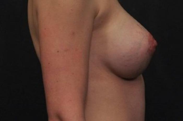 Case #1192 – Breast Augmentation