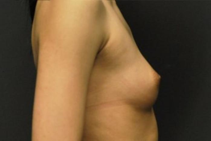 Case #1202 – Breast Augmentation