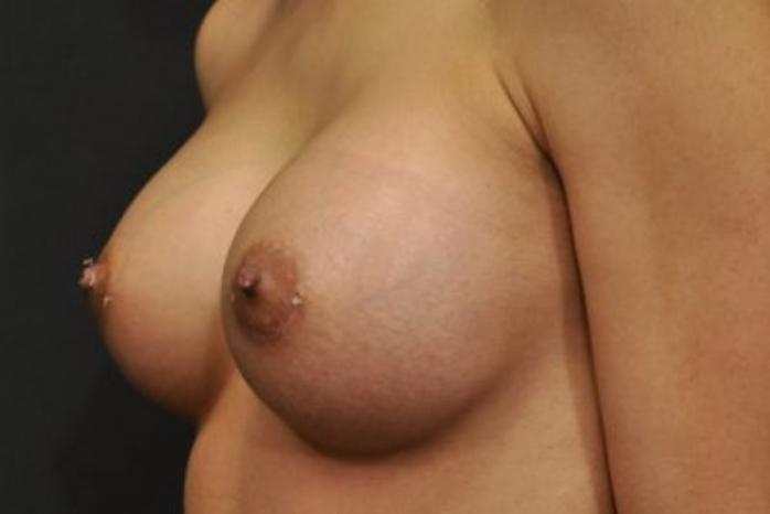 Case #1202 – Breast Augmentation
