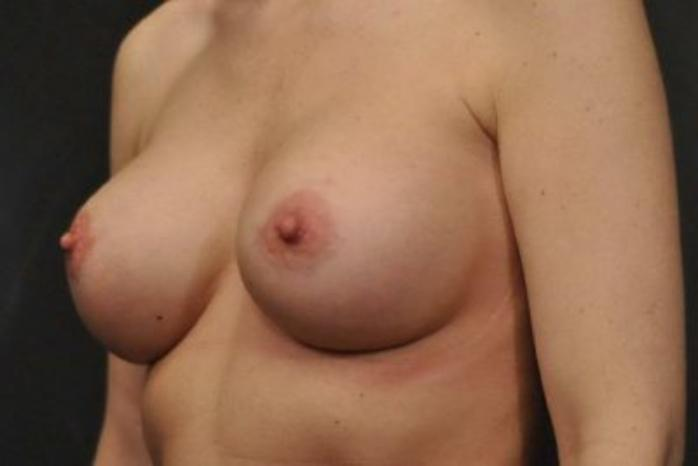Case #1214 – Breast Augmentation