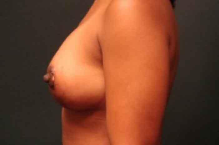 Case #1224 – Breast Augmentation