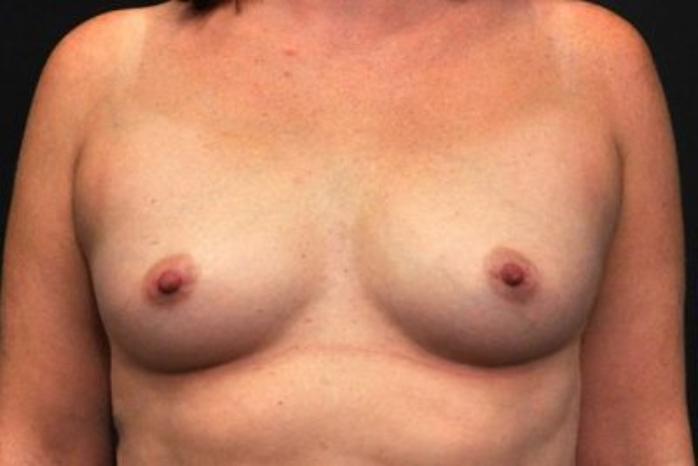 Case #1232 – Breast Augmentation