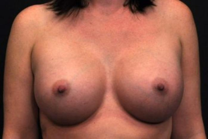 Case #1232 – Breast Augmentation