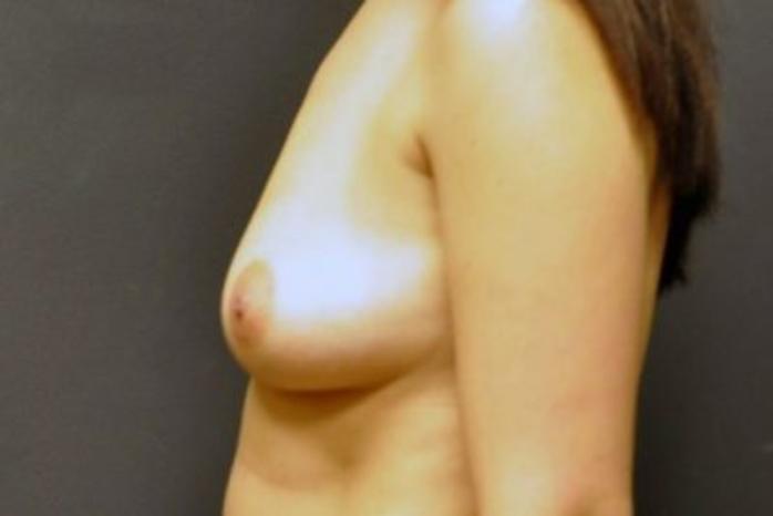 Case #1242 – Breast Augmentation