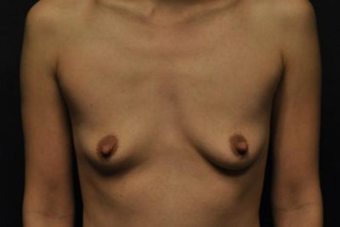 Case #1252 – Breast Augmentation