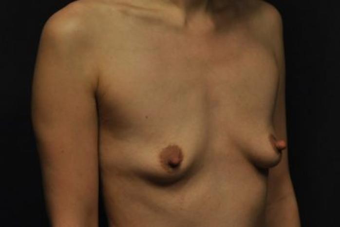 Case #1252 – Breast Augmentation